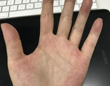吓死了!手掌大面积发红不知道是怎么回事,我这是不是湿气太重啊?